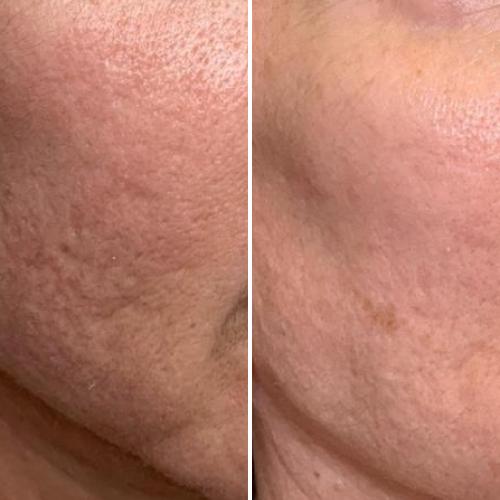 Restauração de pele envelhecida